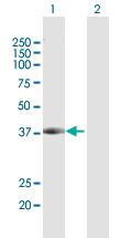 Western blot - DCPS antibody (ab103589)