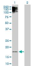 Western blot - ESM1 antibody (ab103590)