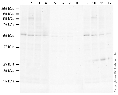 Western blot - Anti-c-Fos (phospho T325) antibody (ab103604)