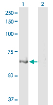 Western blot - ULK4 antibody (ab103610)