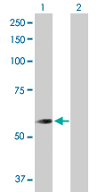 Western blot - CNDP2 antibody (ab103612)