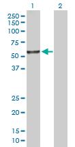 Western blot - MDS028 antibody (ab103613)