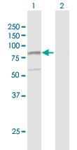 Western blot - Hypothetical Protein FLJ21908 antibody (ab103614)