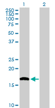 Western blot - MTH1 antibody (ab103615)