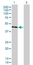 Western blot - UQCRC2 antibody (ab103616)