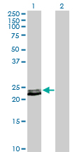 Western blot - Prolactin antibody (ab103617)