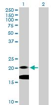 Western blot - IL7 antibody (ab103618)