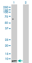 Western blot - Secretin antibody (ab103619)
