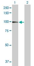 Western blot - CD18 antibody (ab103620)