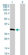 Western blot - Anti-IGFBP6 antibody (ab103627)