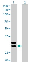 Western blot - Mast Cell Tryptase antibody (ab103628)