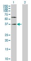 Western blot - Poliovirus Receptor antibody (ab103630)