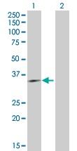 Western blot - ING4 antibody (ab103631)