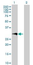 Western blot - PR3 antibody (ab103632)