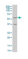Western blot - Retinoid X Receptor gamma antibody (ab103633)
