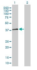 Western blot - RNF41 antibody (ab103634)