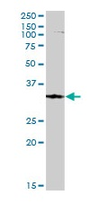 Western blot - FbxO6 antibody (ab103635)