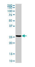 Western blot - Troponin I fast skeletal muscle antibody (ab103636)