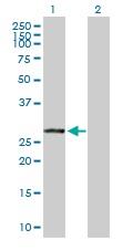 Western blot - VAPB antibody (ab103638)