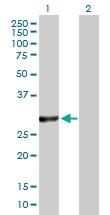 Western blot - VAPB antibody (ab103639)