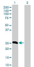 Western blot - Fibrinopeptide A antibody (ab103648)