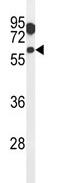 Western blot - LGICZ1 antibody (ab103664)