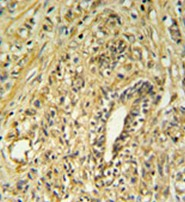 Immunohistochemistry (Formalin/PFA-fixed paraffin-embedded sections) - HSD17B2 antibody (ab103665)