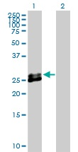 Western blot - EPDR1 antibody (ab103666)