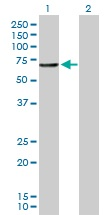 Western blot - CNDP1 antibody (ab103670)