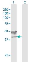 Western blot - GCNT2 antibody (ab103696)