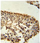 Immunohistochemistry (Formalin/PFA-fixed paraffin-embedded sections) - ERO1LB antibody (ab103704)