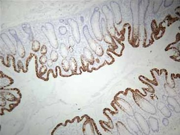 Immunohistochemistry (Formalin/PFA-fixed paraffin-embedded sections) - HistoReveal (15ml) (ab103720)