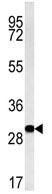 Western blot - C3orf75  antibody (ab103738)