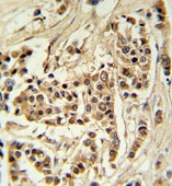 Immunohistochemistry (Formalin/PFA-fixed paraffin-embedded sections) - TTPAL antibody (ab103740)