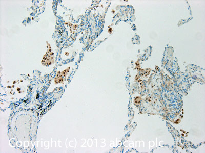 Immunohistochemistry (Formalin/PFA-fixed paraffin-embedded sections) - Anti-5 Lipoxygenase antibody (ab103765)