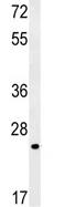 Western blot - ZFAND2B antibody - N-terminal (ab103773)