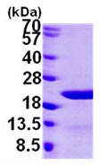 SDS-PAGE - EIF1AY protein (ab103788)