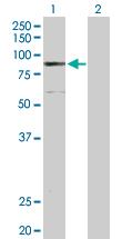 Western blot - ELAC2 antibody (ab103793)