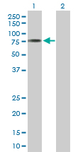 Western blot - ACSM3 antibody (ab103794)