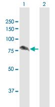 Western blot - ALDH16A1 antibody (ab103795)