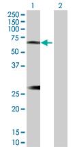 Western blot - IL6R antibody (ab103798)