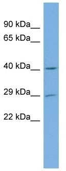 Western blot - FLJ14154 antibody (ab103800)