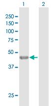 Western blot - KRT35 antibody (ab103803)