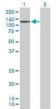Western blot - STK36 antibody (ab103807)