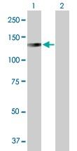Western blot - LONP1 antibody (ab103809)