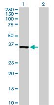 Western blot - MDH1 antibody (ab103811)