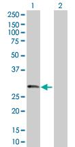 Western blot - Trypsin antibody (ab103812)