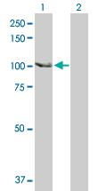 Western blot - SCYL2 antibody (ab103819)
