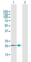 Western blot - TMEM126B antibody (ab103820)