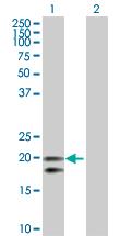 Western blot - CEACAM21 antibody (ab103822)